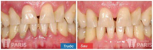 bị viêm nướu răng