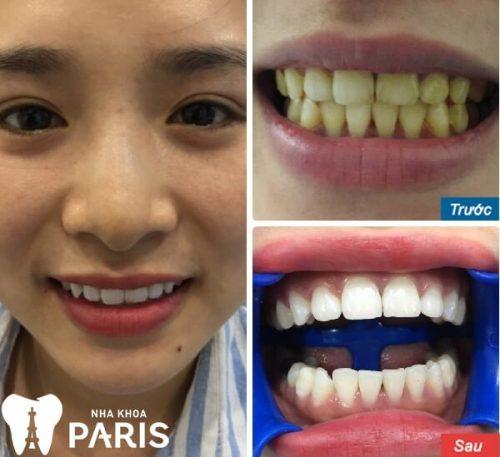cách làm trắng răng bằng giấy bạc