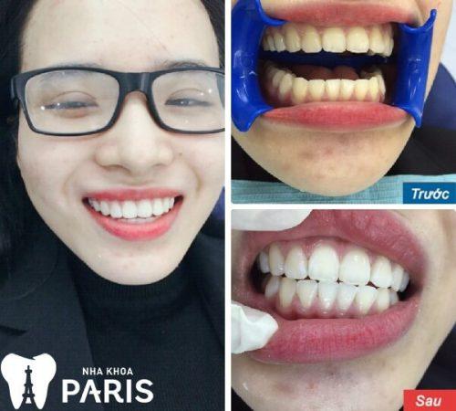 làm trắng răng tại nha khoa