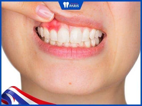 Răng cửa là vị trí răng thường bị lợi trùm