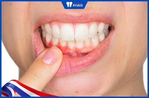 Lợi trùm răng
