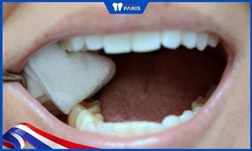 lưu ý sau khi nhổ răng cấm tại nhà