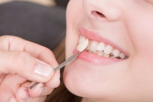 giải pháp cho giấc mơ về răng