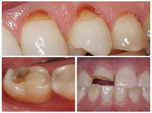 nguyên nhân đau răng hàm