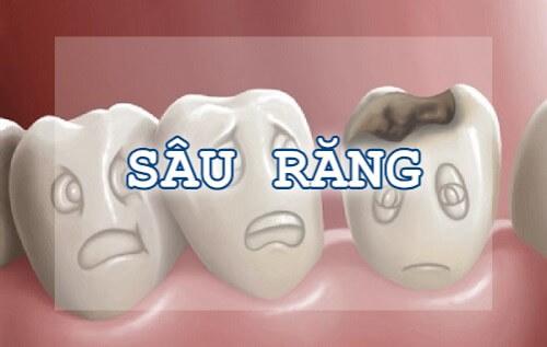 nguyên nhân đau răng sâu