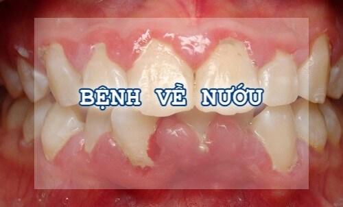 nguyên nhân gây nhức răng