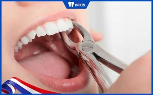 Nhổ bỏ răng khôn chữa lợi trùm