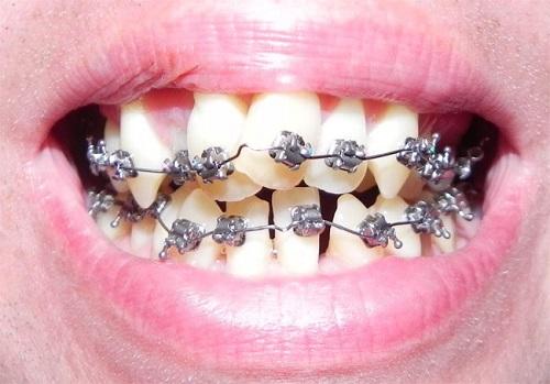 niềng răng không thành công