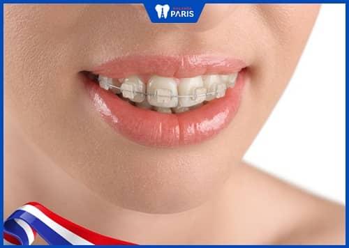 niềng răng hô thay đổi số phận