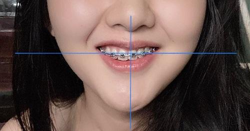 dấu hiệu niềng răng hỏng