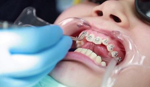 niềng răng thất bại