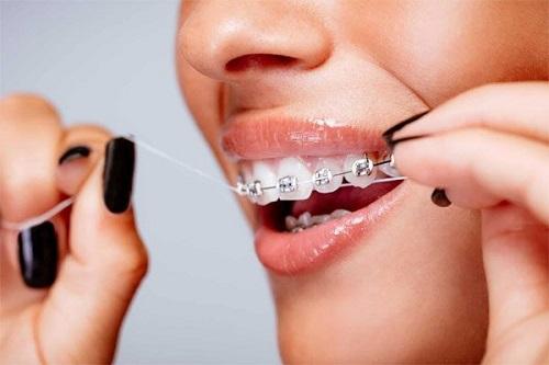 niềng răng hỏng do vệ sinh răng miệng không đúng cách