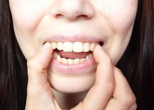 Niềng răng thất bại gây ra những hậu quả gì?