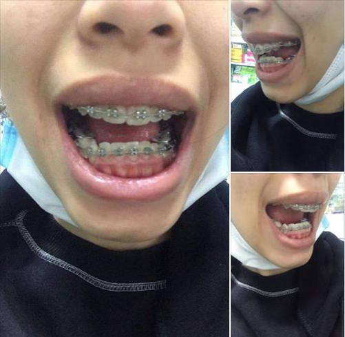 ca niềng răng bị hỏng làm tụt nướu