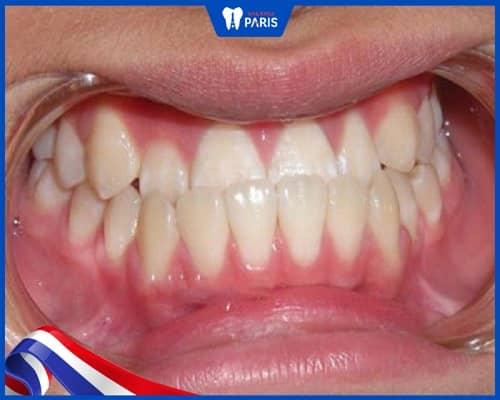 chỉnh răng quặp thay đổi tướng số