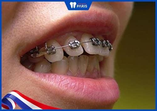 niềng răng thưa thay đổi số phận