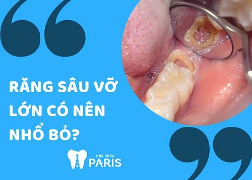 răng bị vỡ có nên nhổ