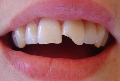 răng bị vỡ mẻ