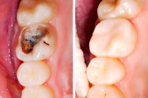 răng sâu bị vỡ có trám được không