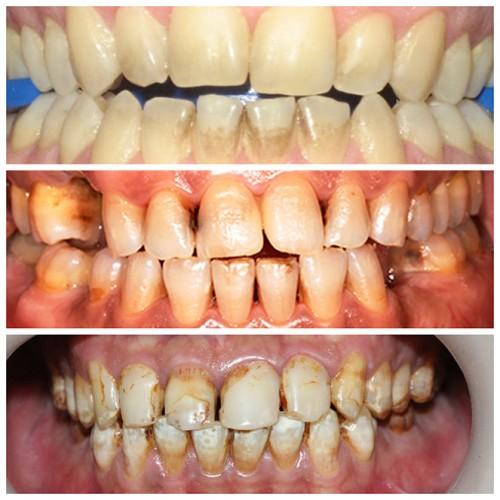 Răng vàng nguyên nhân