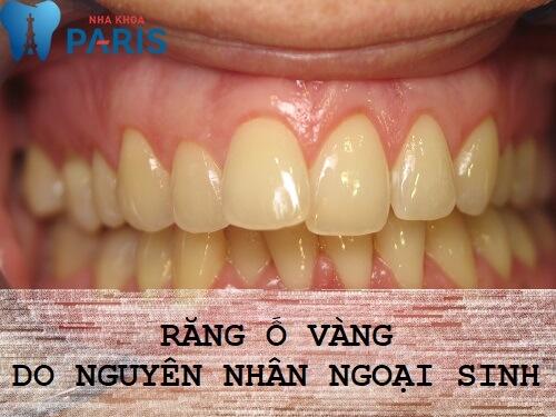 răng vàng ố phải làm sao