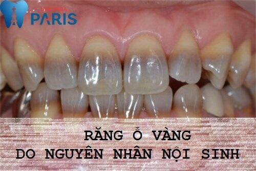 Vì sao răng bị vàng