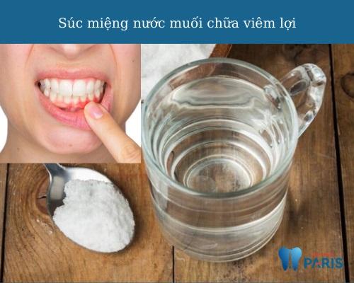 Chữa viêm lợi bằng súc miệng nước muối