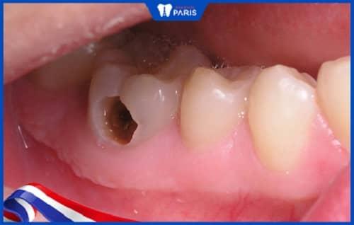 Hỏng tủy răng do viêm lợi gây nên