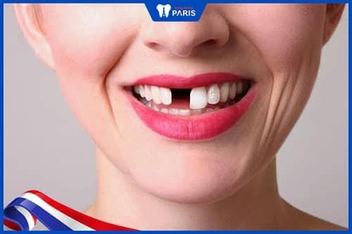 Viên nướu răng có thể gây mất răng