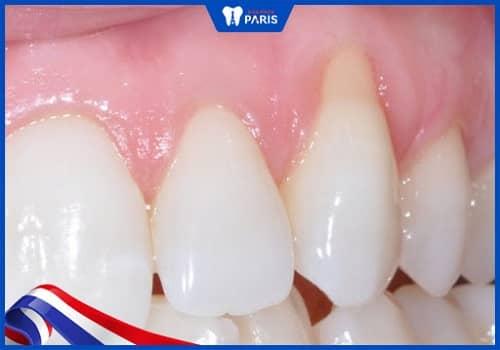 Viêm nướu răng có thể gây ảnh hưởng tới xương, cấu trúc răng