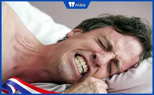 Nghiến răng cũng là một nguyên nhân khiến nướu răng bị viêm