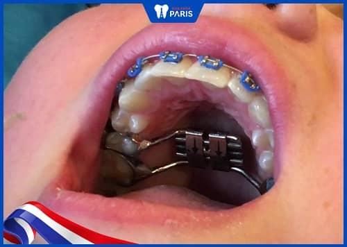 vừa nong hàm vừa niềng răng