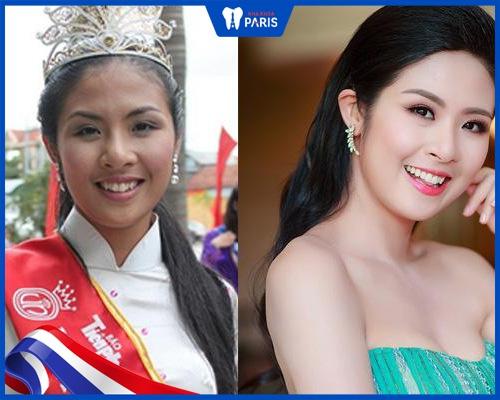 sao Việt niềng răng - Hoa hậu Ngọc Hân