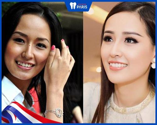 sao Việt niềng răng - Hoa hậu Mai Phương Thúy