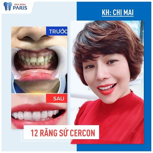tẩy trắng răng cho răng sứ