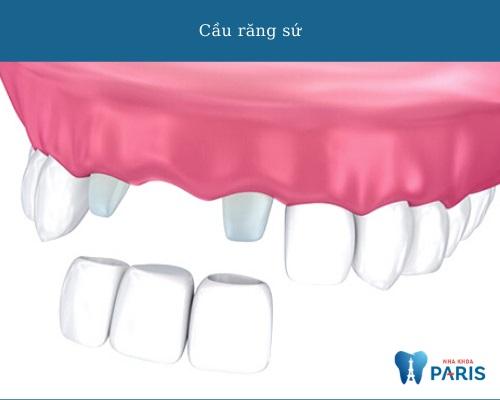 Các phương pháp trồng răng - cầu răng sứ