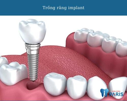 phương pháp trồng răng mới - implant