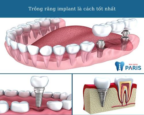 các cách trồng răng