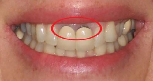 cách trị chân răng bị đen tại nhà
