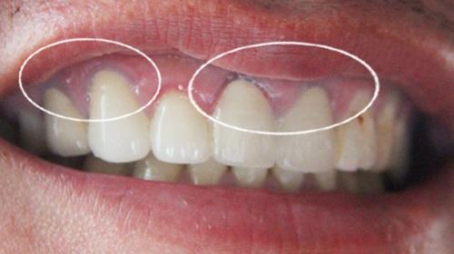 chân răng bị đen là bệnh gì