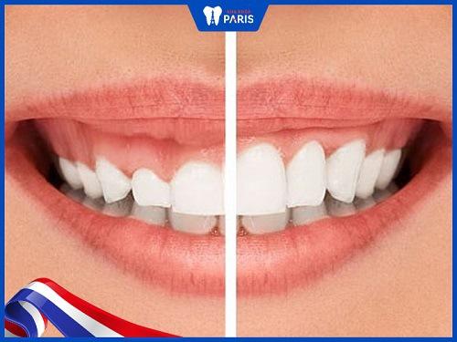 điều trị cười hở lợi không phẫu thuật