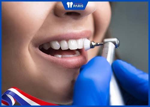 đánh bóng răng có làm răng ê buốt không