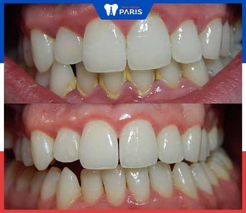 đánh bóng răng có trắng răng không
