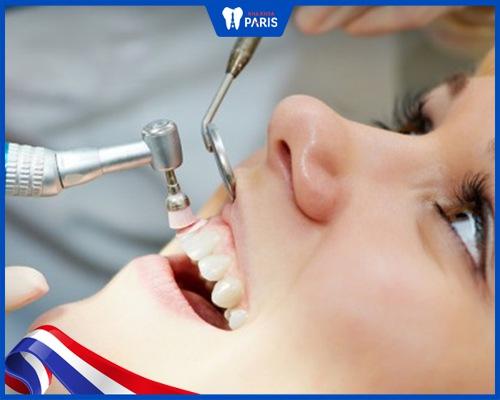 Đánh bóng răng là gì?