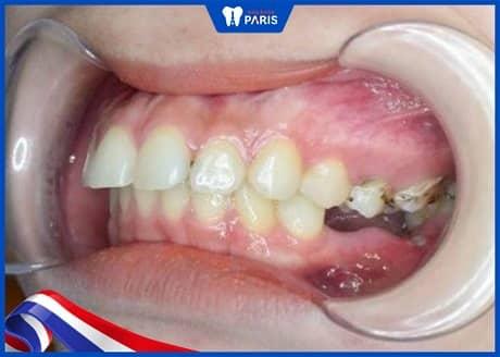 làm lún răng điều chỉnh răng bị trồi