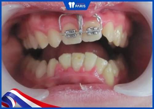 đánh lún răng chữa cười hở lợi