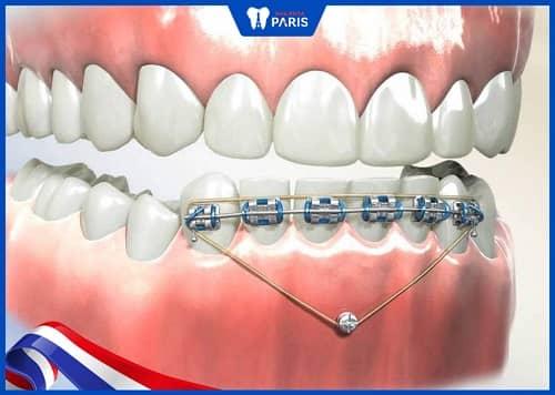 đánh lún răng là như thế nào