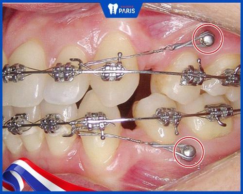 Đánh lún răng bằng minivis