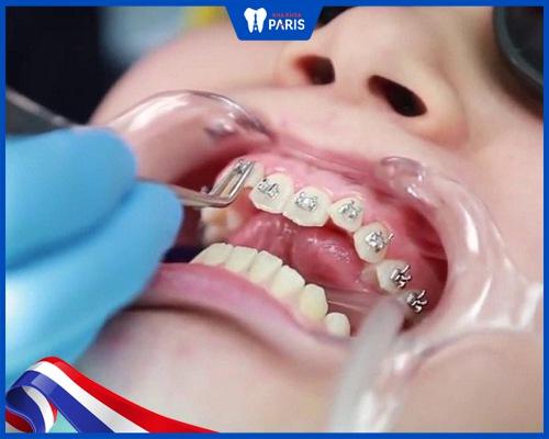 Gắn mắc cài niềng răng có tác dụng gì?