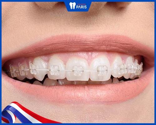 Tại sao phải gắn mắc cài rồi mới nhổ răng?